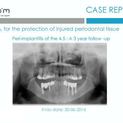 BlueM case report EN peri-implantitis of the 45 2017