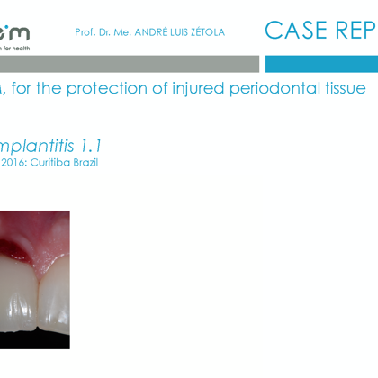 BlueM case report Maike Huisman 1 peri-implantitis November 2016