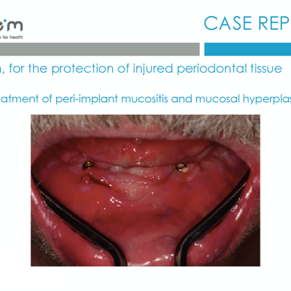 BlueM case report EN Dentalline 5 peri-implant mucositis- oral gel 2017